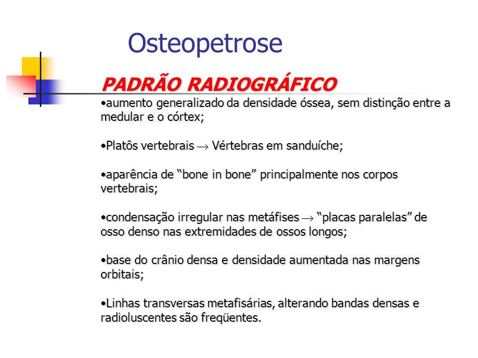 Osteopetrose PADRÃO RADIOGRÁFICO