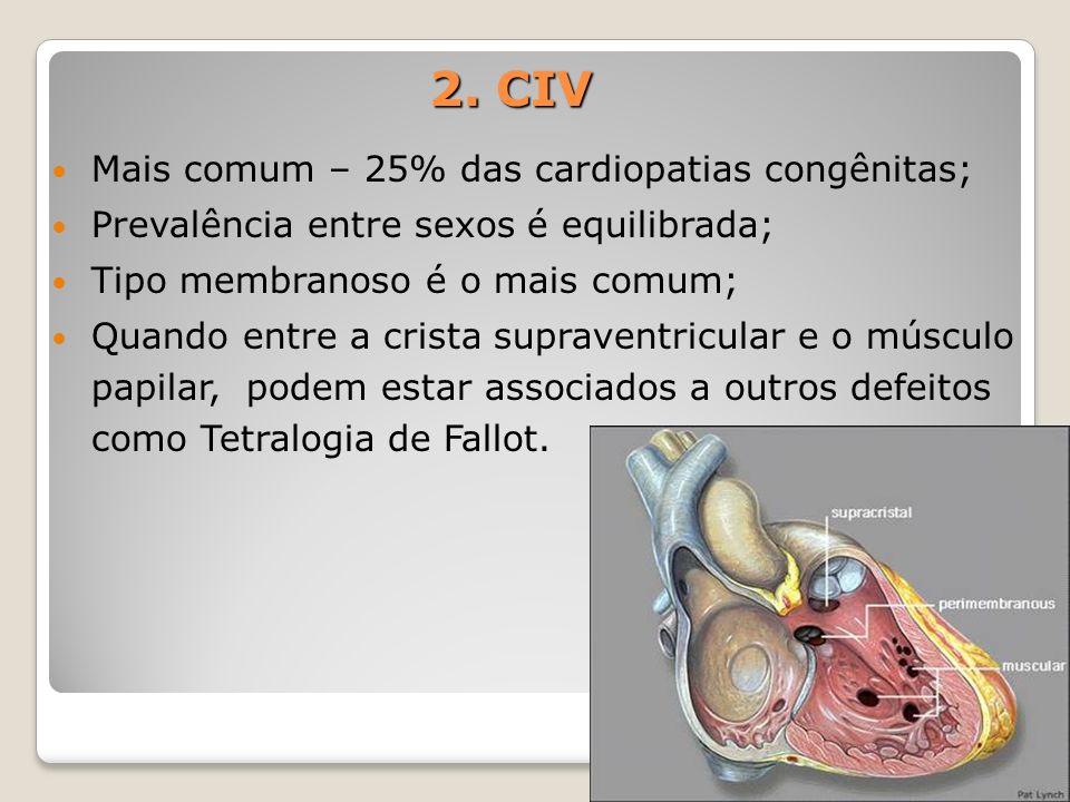 2. CIV Mais comum – 25% das cardiopatias congênitas;