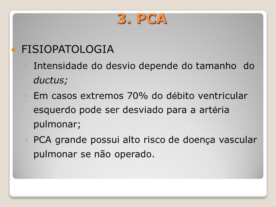 3. PCA FISIOPATOLOGIA. Intensidade do desvio depende do tamanho do ductus;
