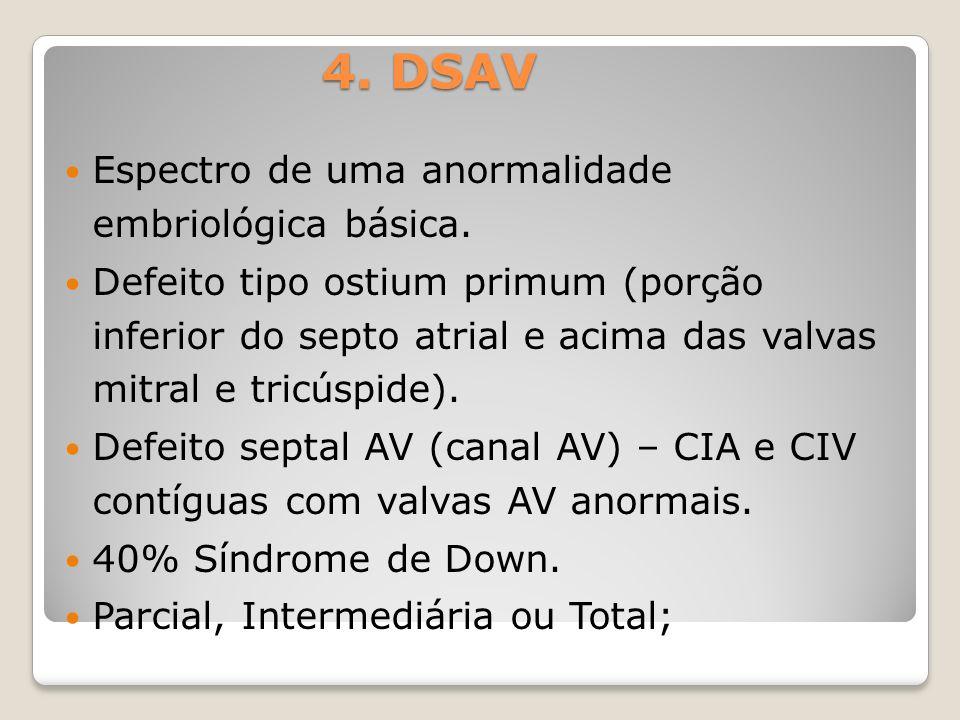 4. DSAV Espectro de uma anormalidade embriológica básica.