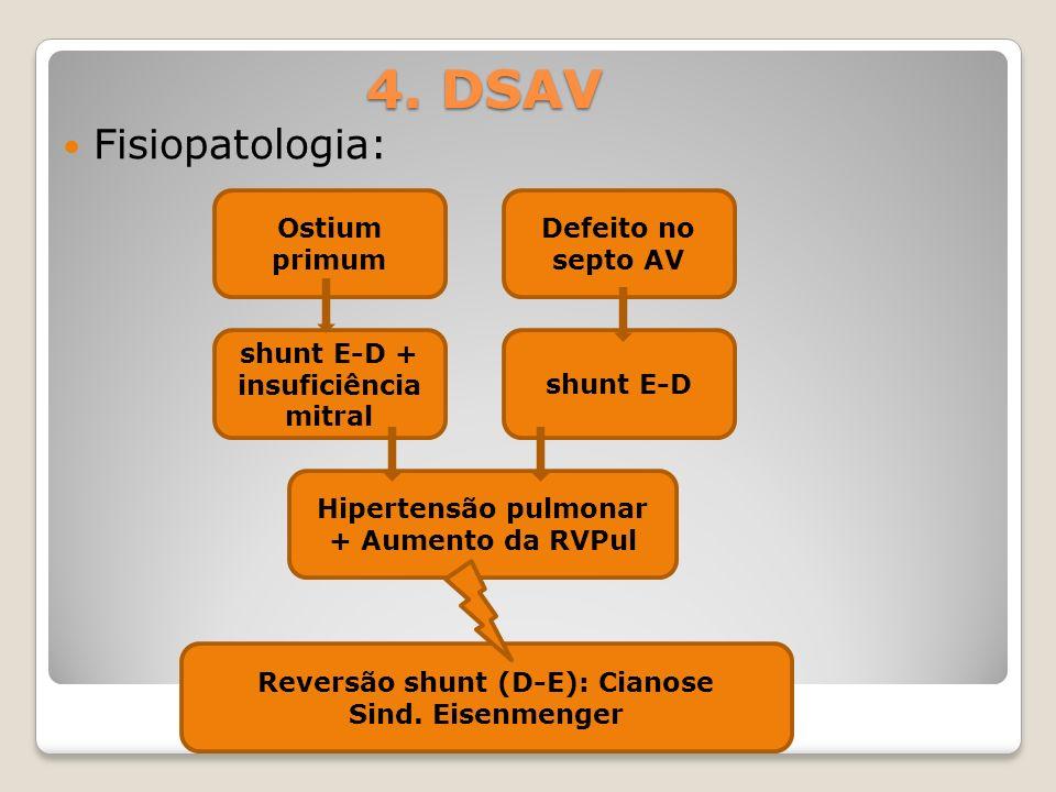 4. DSAV Fisiopatologia: Ostium primum Defeito no septo AV