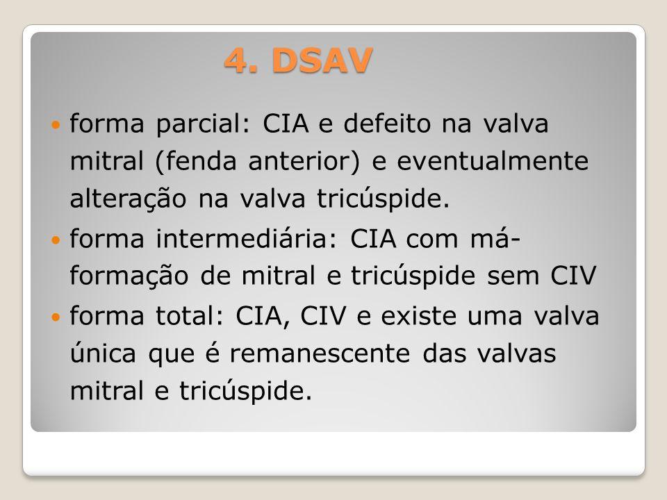 4. DSAVforma parcial: CIA e defeito na valva mitral (fenda anterior) e eventualmente alteração na valva tricúspide.