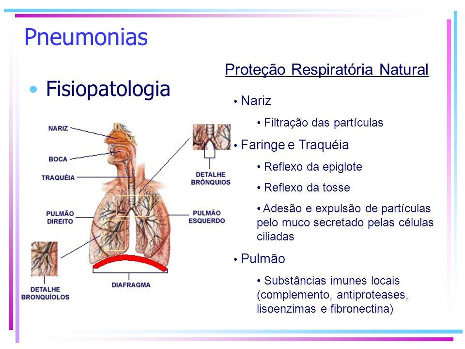 Proteção Respiratória Natural