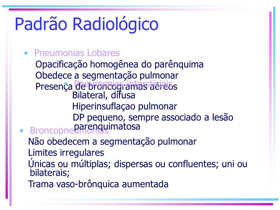 Padrão Radiológico Pneumonias Lobares