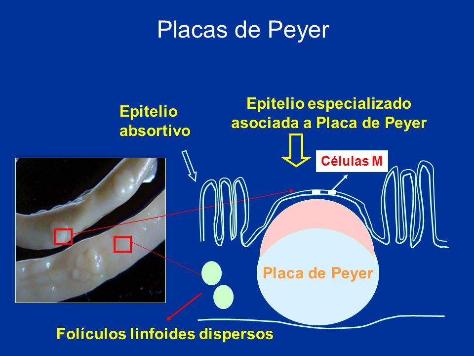 Epitelio especializado asociada a Placa de Peyer