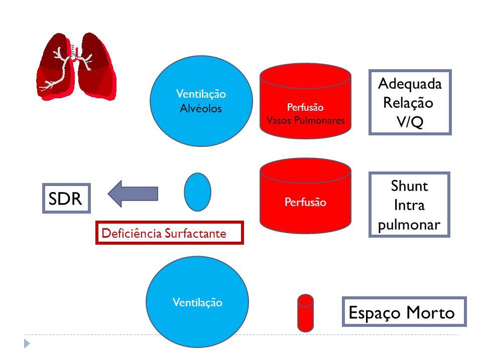 SDR Espaço Morto Adequada Relação V/Q Shunt Intra pulmonar