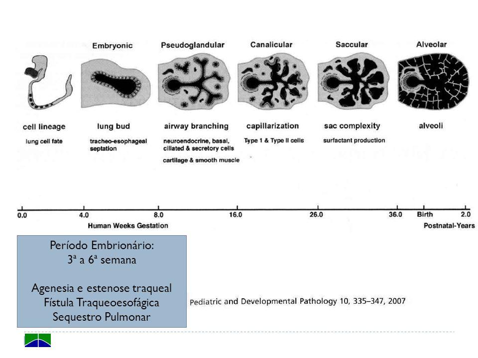 Agenesia e estenose traqueal Fístula Traqueoesofágica