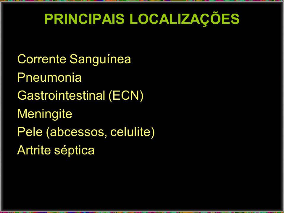 PRINCIPAIS LOCALIZAÇÕES