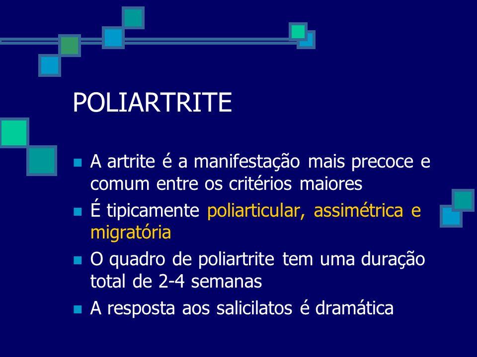 POLIARTRITE A artrite é a manifestação mais precoce e comum entre os critérios maiores. É tipicamente poliarticular, assimétrica e migratória.