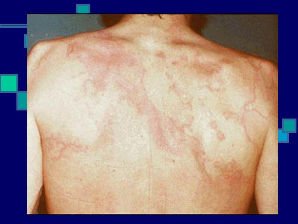 ERITEMA MARGINATUM É um rash eritematoso máculo-papular, que costuma se estender de forma centrípeta.