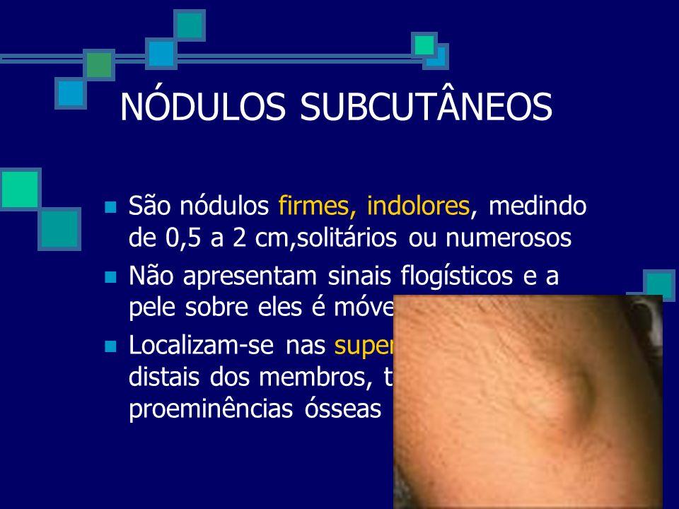 NÓDULOS SUBCUTÂNEOS São nódulos firmes, indolores, medindo de 0,5 a 2 cm,solitários ou numerosos.