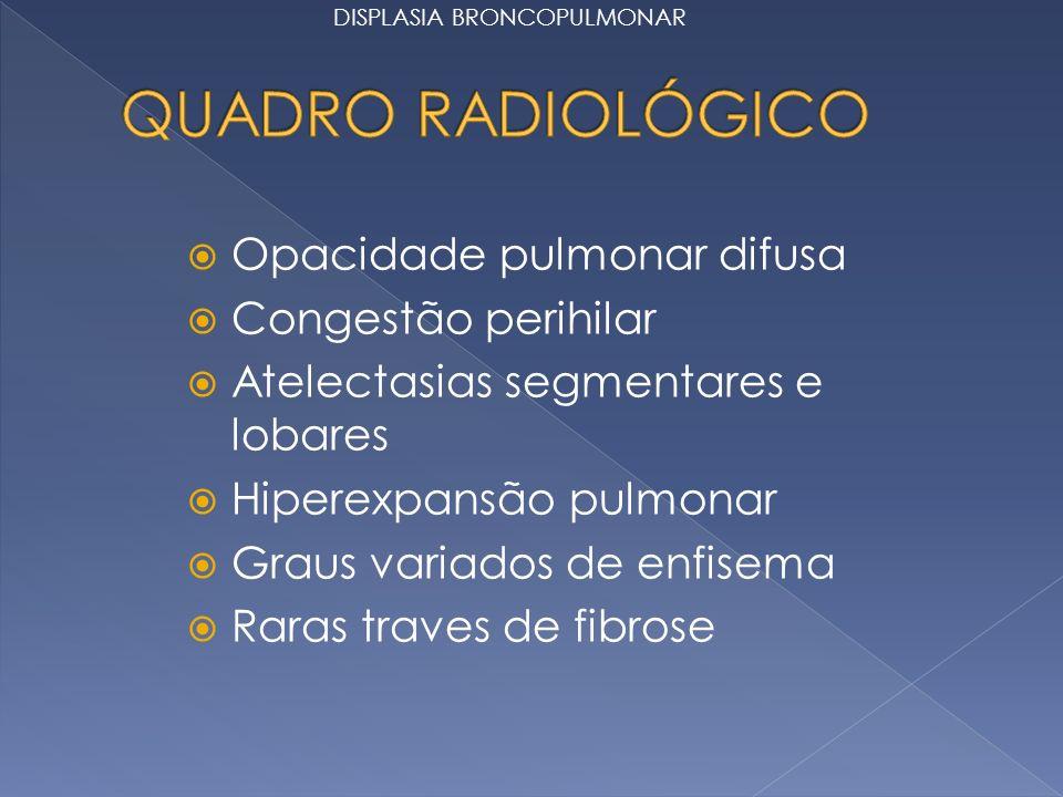 QUADRO RADIOLÓGICO Opacidade pulmonar difusa Congestão perihilar