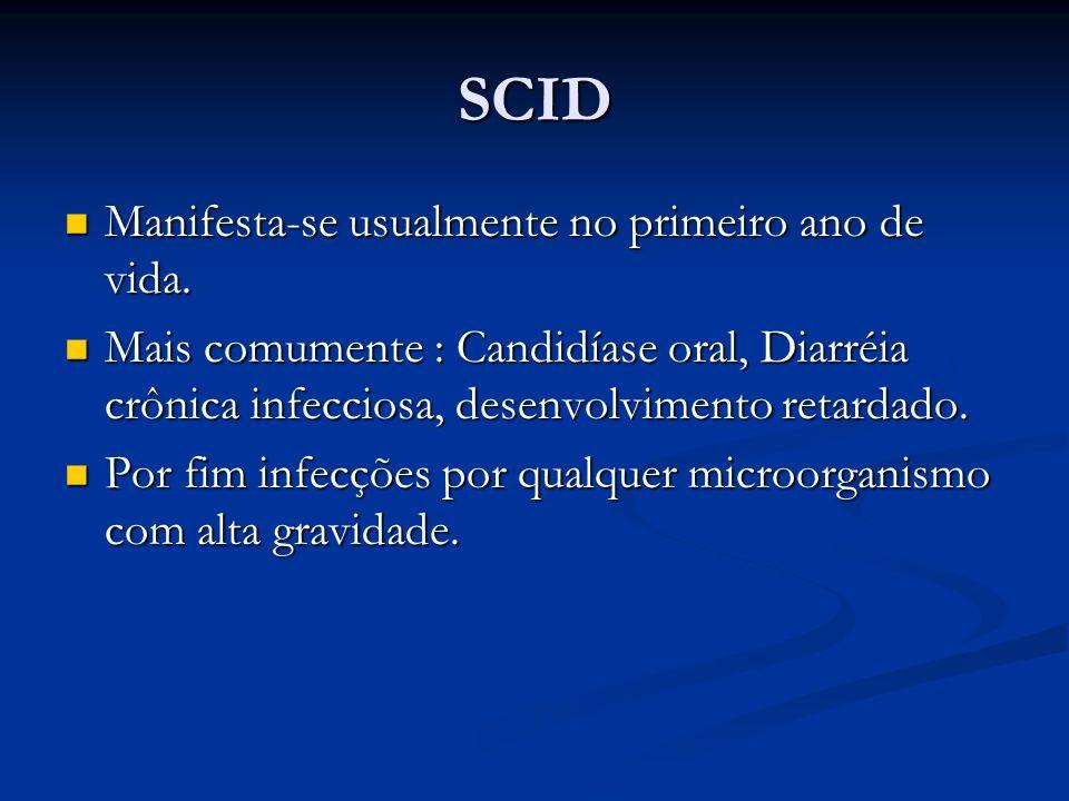 SCID Manifesta-se usualmente no primeiro ano de vida.