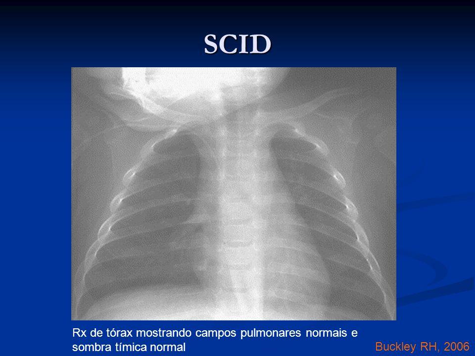 SCID Rx de tórax mostrando campos pulmonares normais e