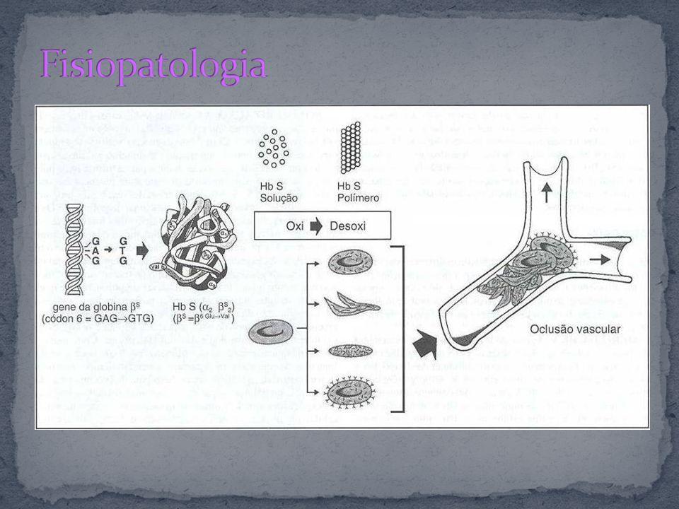 A causa da Hb S é uma mutação puntiforme com uma única substituição de amino-ácidos(ácido glutâmico pela valina) na porção 6 da cadeia de b-globina.