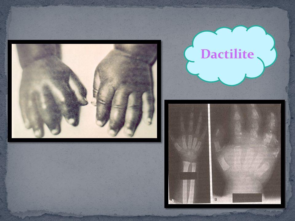 Dactilite Vaso-oclusão da microvasculatura da medula óssea