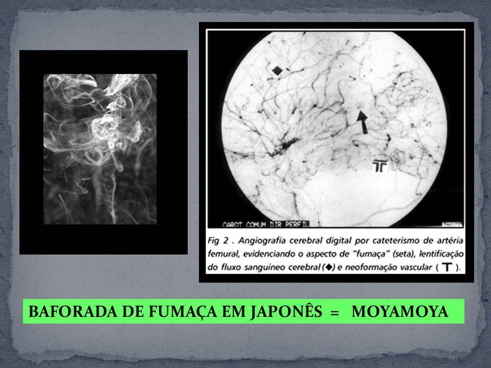 BAFORADA DE FUMAÇA EM JAPONÊS = MOYAMOYA