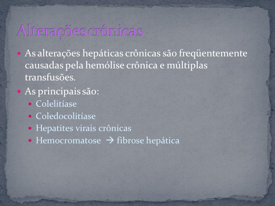 Alterações crônicasAs alterações hepáticas crônicas são freqüentemente causadas pela hemólise crônica e múltiplas transfusões.