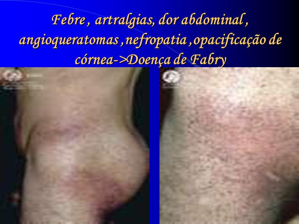 Febre , artralgias, dor abdominal , angioqueratomas ,nefropatia ,opacificação de córnea->Doença de Fabry