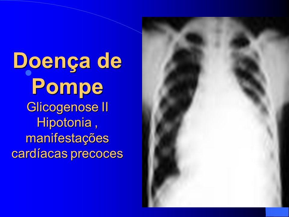Doença de Pompe Glicogenose II Hipotonia , manifestações cardíacas precoces