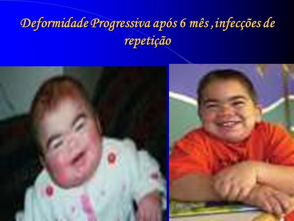 Deformidade Progressiva após 6 mês ,infecções de repetição