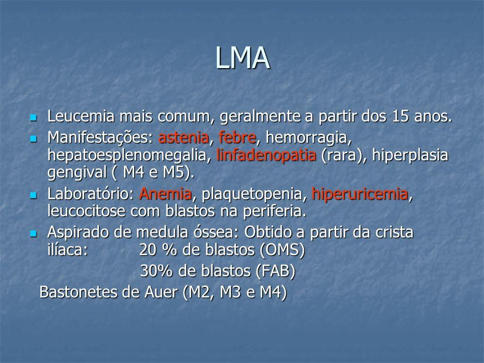 LMA Leucemia mais comum, geralmente a partir dos 15 anos.