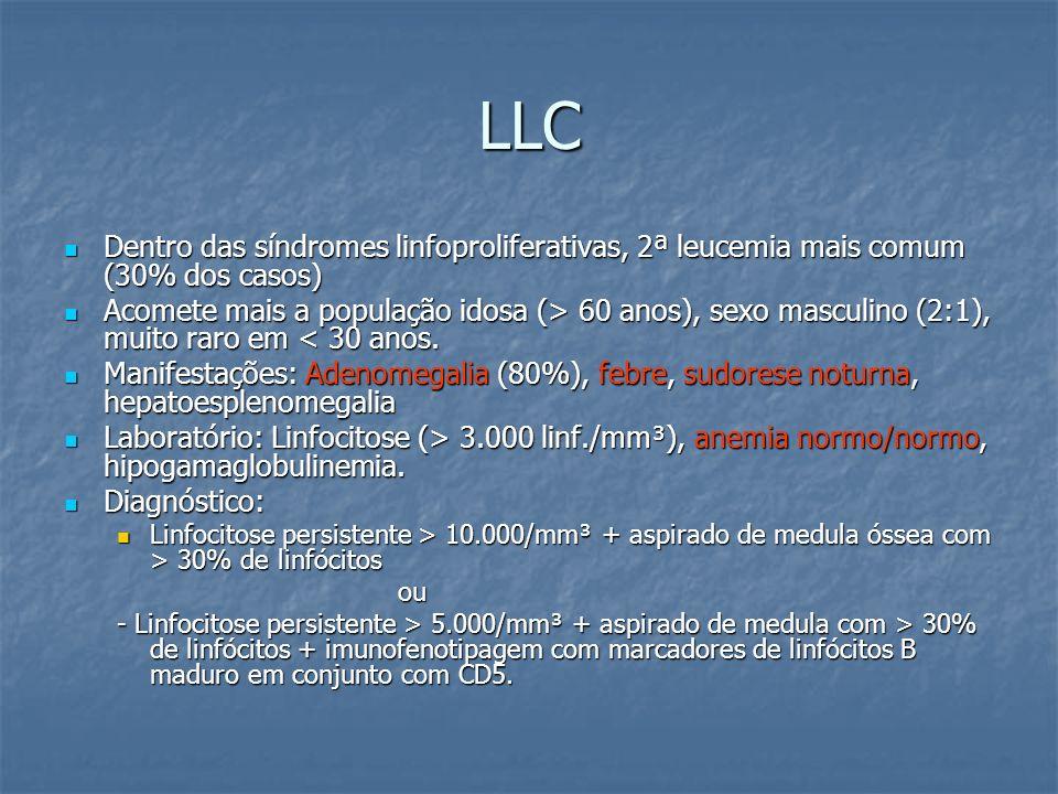 LLC Dentro das síndromes linfoproliferativas, 2ª leucemia mais comum (30% dos casos)
