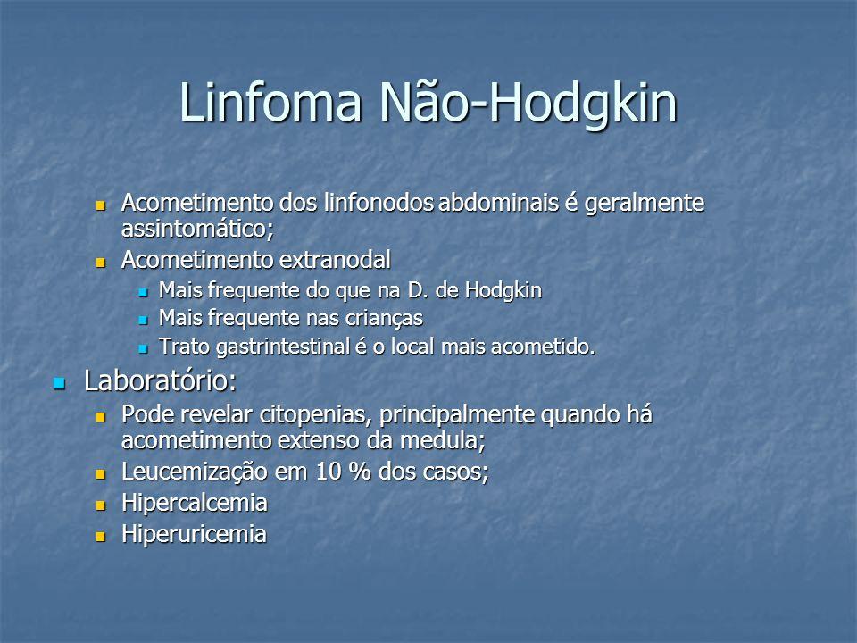 Linfoma Não-Hodgkin Laboratório:
