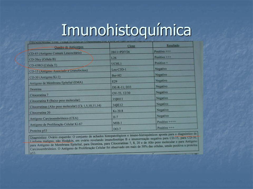 Imunohistoquímica