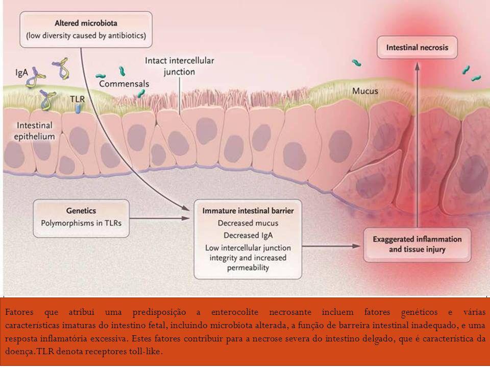 Fatores que atribui uma predisposição a enterocolite necrosante incluem fatores genéticos e várias características imaturas do intestino fetal, incluindo microbiota alterada, a função de barreira intestinal inadequado, e uma resposta inflamatória excessiva. Estes fatores contribuir para a necrose severa do intestino delgado, que é característica da doença.TLR denota receptores toll-like.