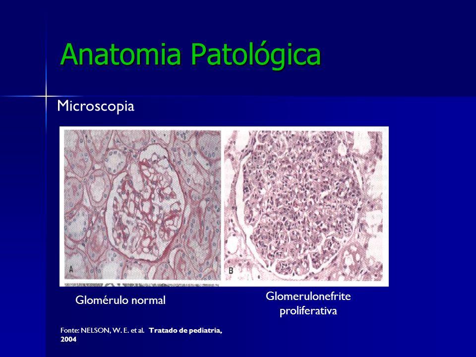 Glomerulonefrite proliferativa