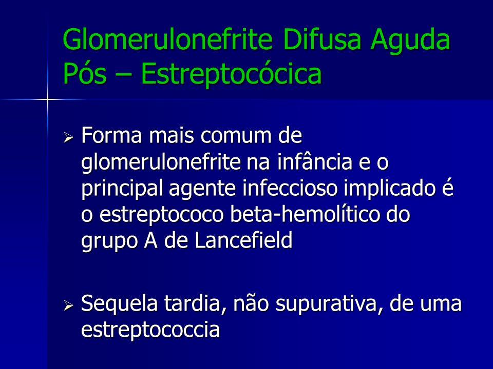 Glomerulonefrite Difusa Aguda Pós – Estreptocócica