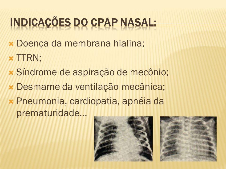 INDICAÇÕES DO CPAP NASAL:
