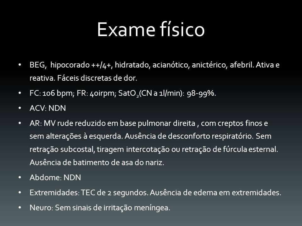 Exame físico BEG, hipocorado ++/4+, hidratado, acianótico, anictérico, afebril. Ativa e reativa. Fáceis discretas de dor.