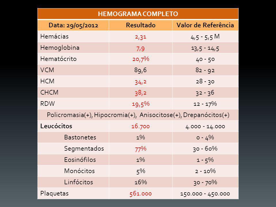Policromasia(+), Hipocromia(+), Anisocitose(+), Drepanócitos(+)