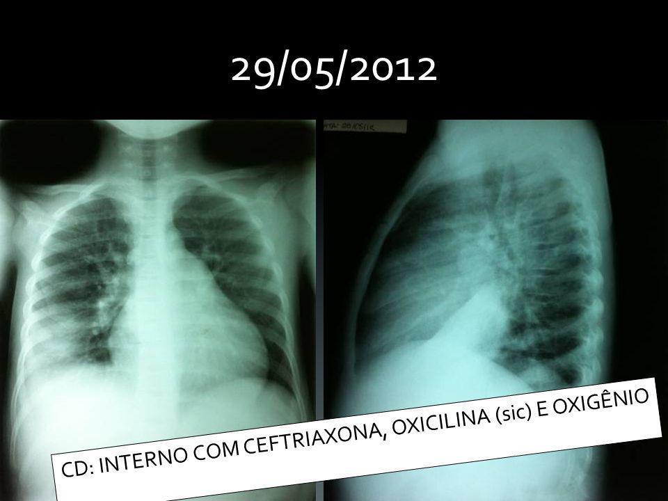 CD: INTERNO COM CEFTRIAXONA, OXICILINA (sic) E OXIGÊNIO