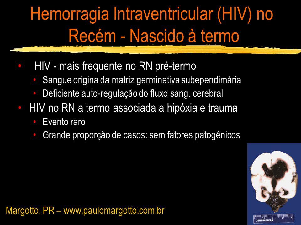 Hemorragia Intraventricular (HIV) no Recém - Nascido à termo