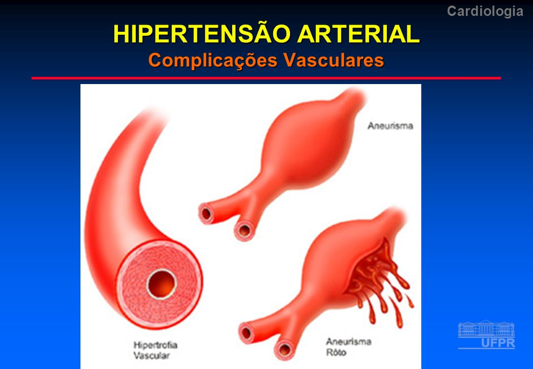 HIPERTENSÃO ARTERIAL Complicações Vasculares