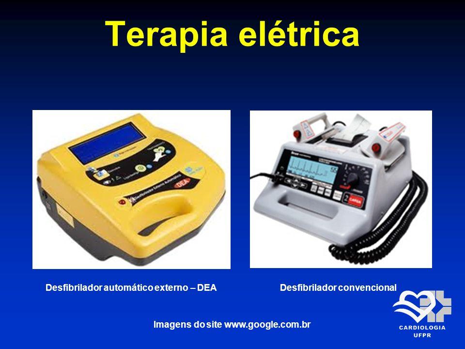 Terapia elétrica Desfibrilador automático externo – DEA