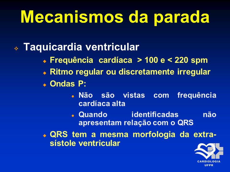 Mecanismos da parada Taquicardia ventricular