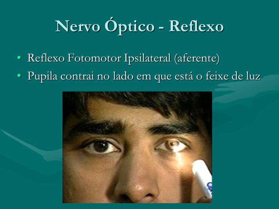 Nervo Óptico - Reflexo Reflexo Fotomotor Ipsilateral (aferente)