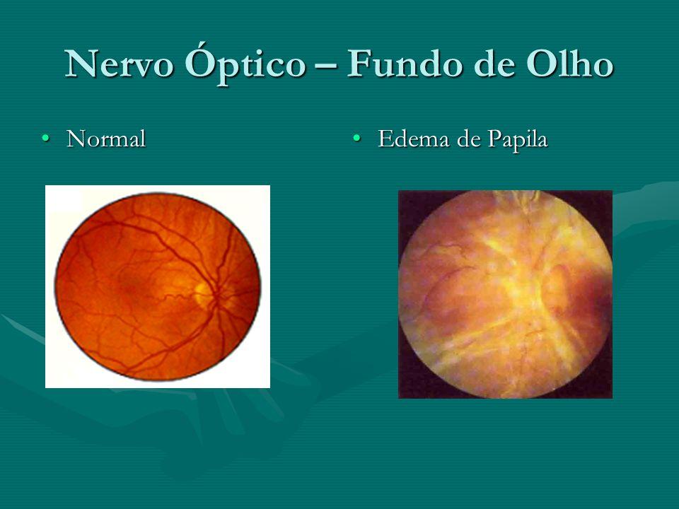 Nervo Óptico – Fundo de Olho