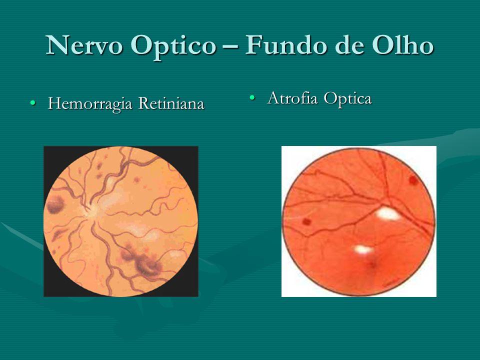 Nervo Optico – Fundo de Olho