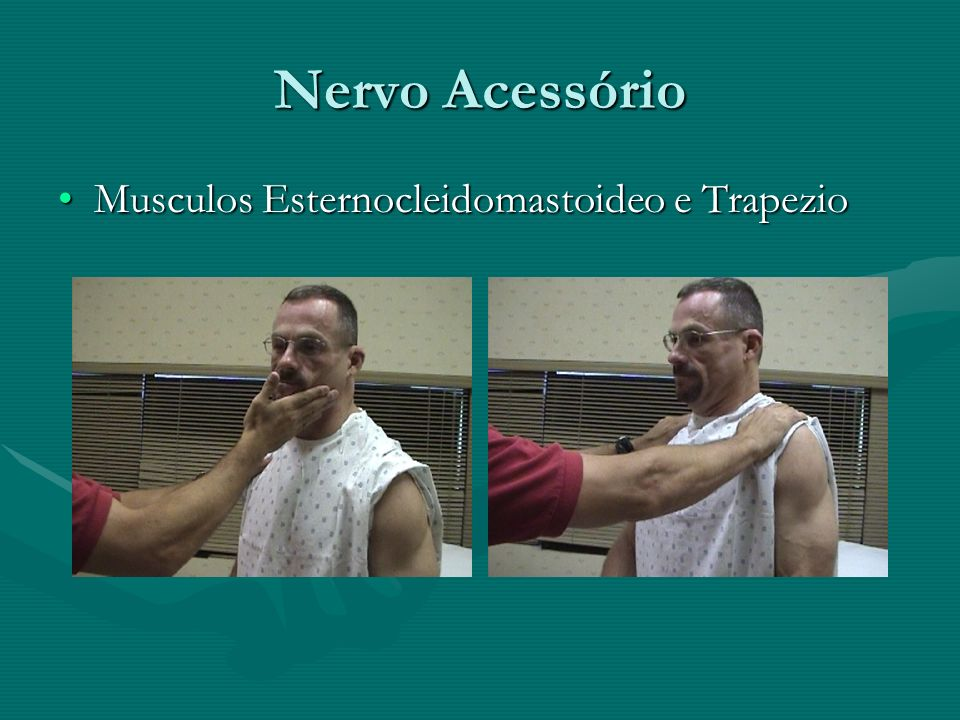 Nervo Acessório Musculos Esternocleidomastoideo e Trapezio