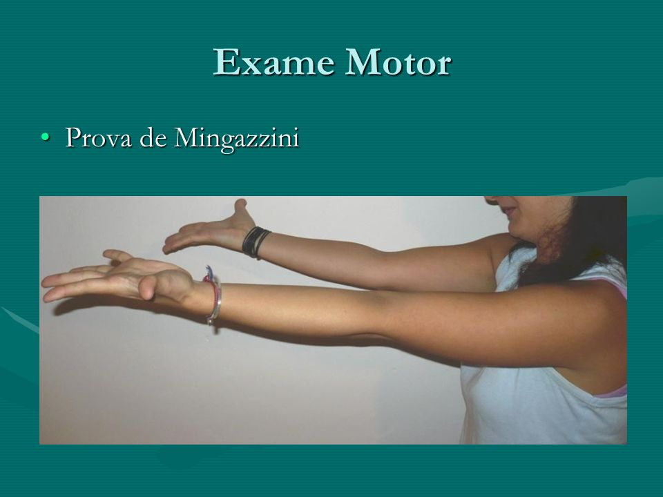 Exame Motor Prova de Mingazzini