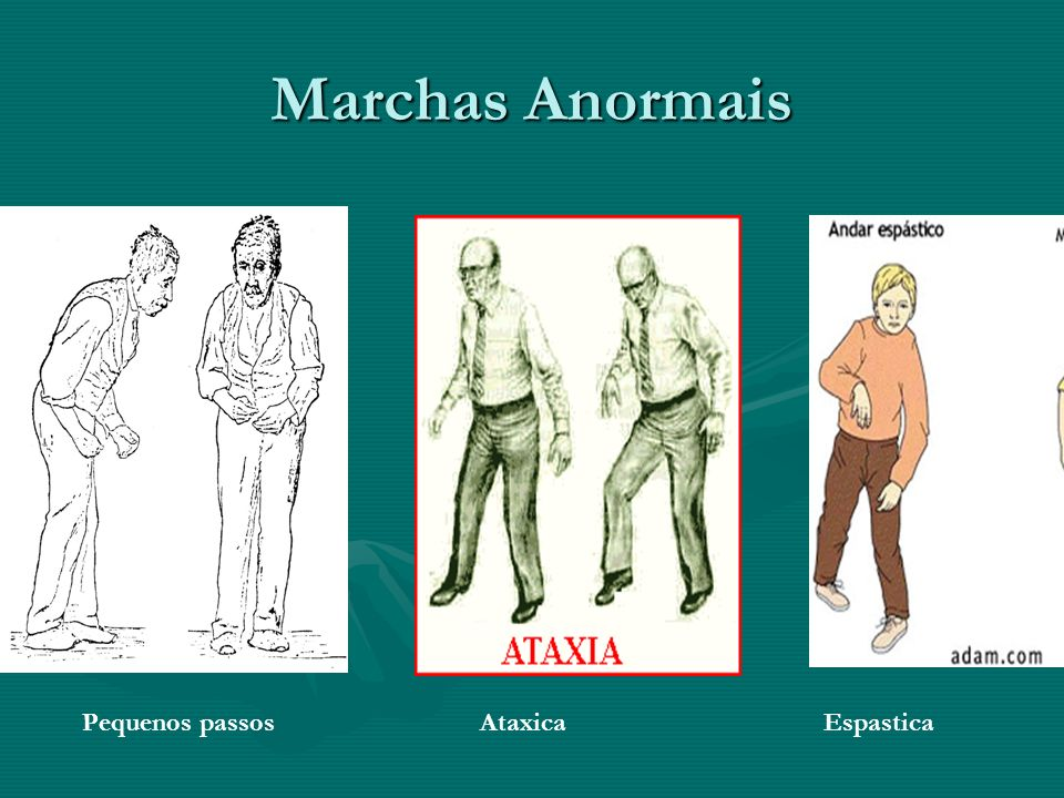 Marchas Anormais Pequenos passos Ataxica Espastica.