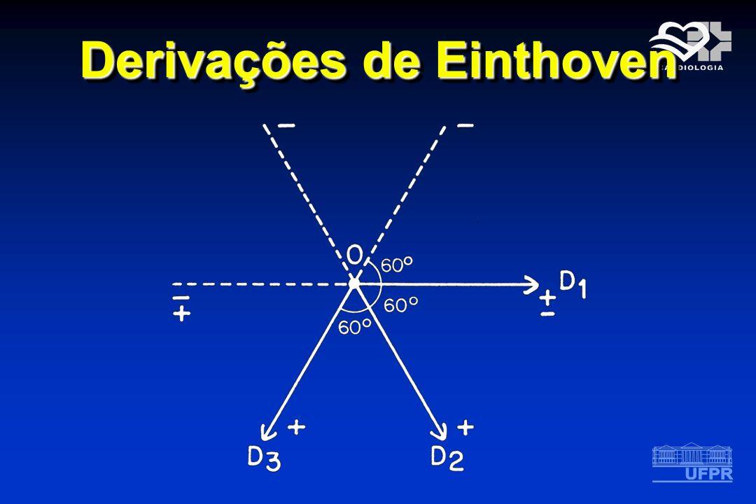 Derivações de Einthoven