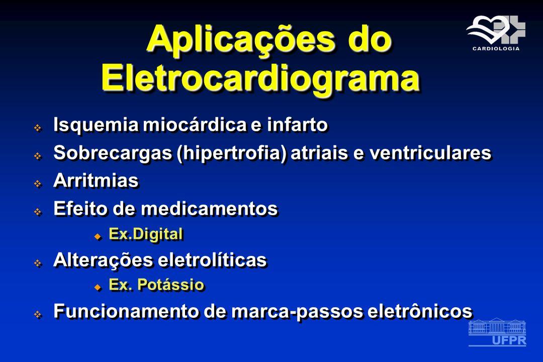 Aplicações do Eletrocardiograma