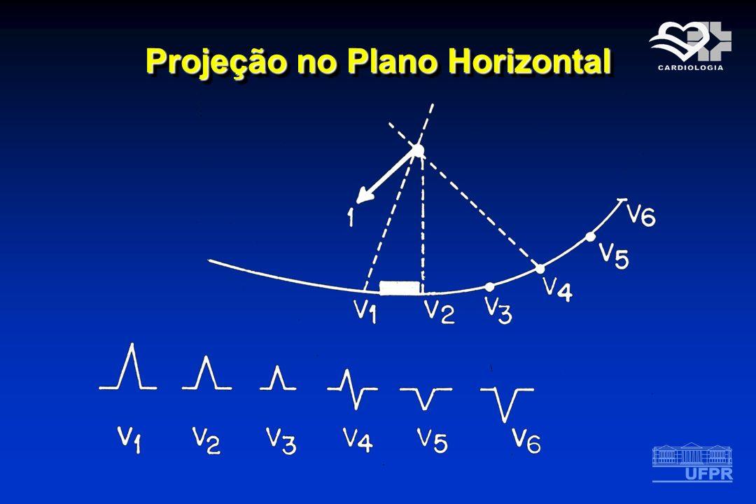 Projeção no Plano Horizontal