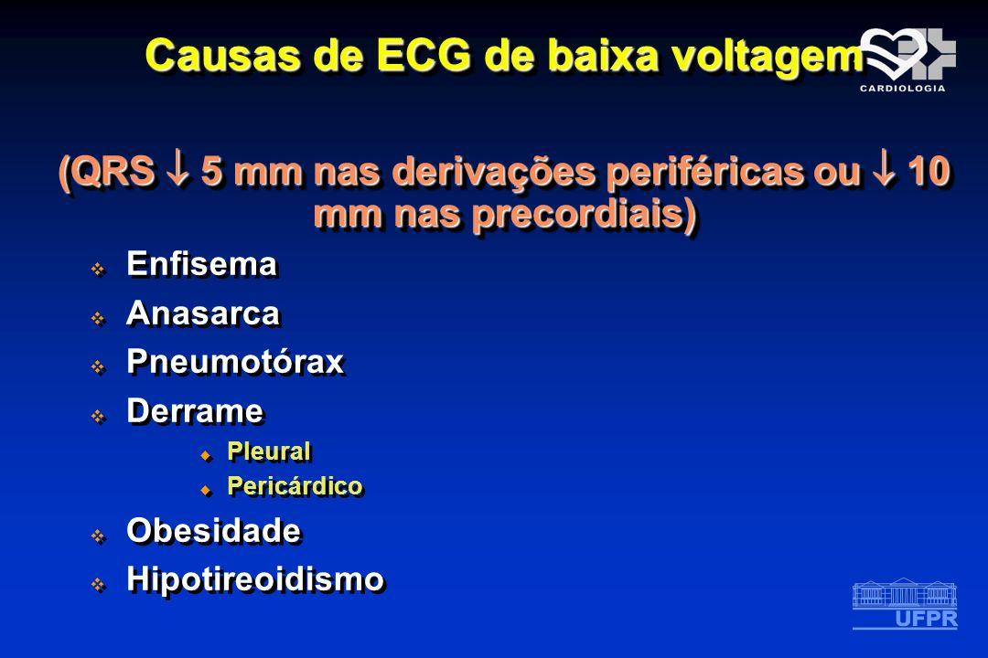 Causas de ECG de baixa voltagem